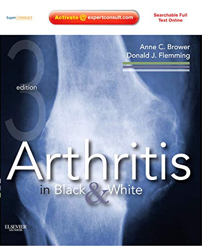 Arthritis in Black and White: Expert Consult - Online and Print von Saunders