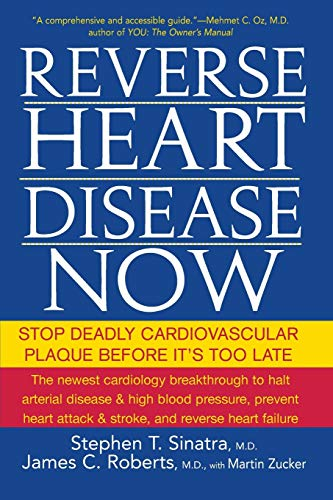 Reverse Heart Disease Now: Stop Deadly Cardiovascular Plaque Before It's Too Late von JOHN WILEY & SONS INC