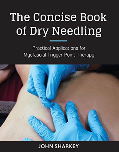 The Concise Book of Dry Needling: A Practitioner's Guide to Myofascial Trigger Point Applications von North Atlantic Books