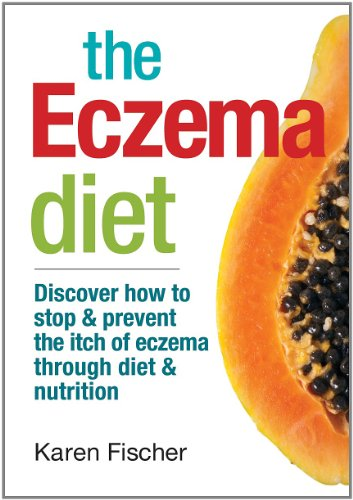 The Eczema Diet: Discover How to Stop and Prevent the Itch of Eczema Through Diet and Nutrition von ROBERT ROSE INC